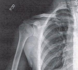 Рентгеновский снимок при переломе плеча