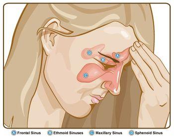 Схема расположения носовых пазух