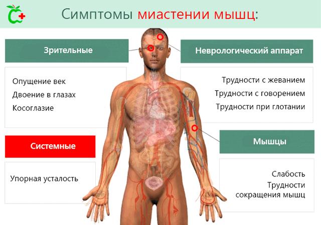 Стандартные симптомы миастении мышцы