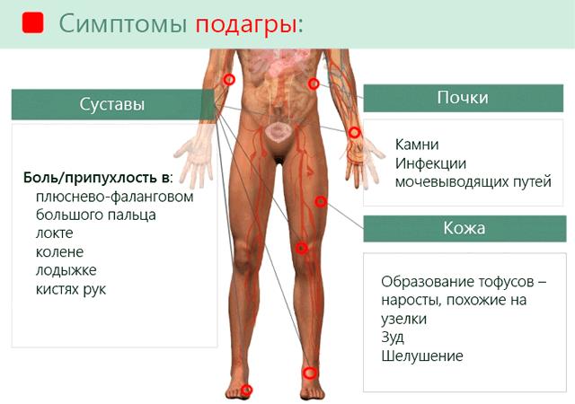 Симптомы отложения мочевой кислоты и развития подагры