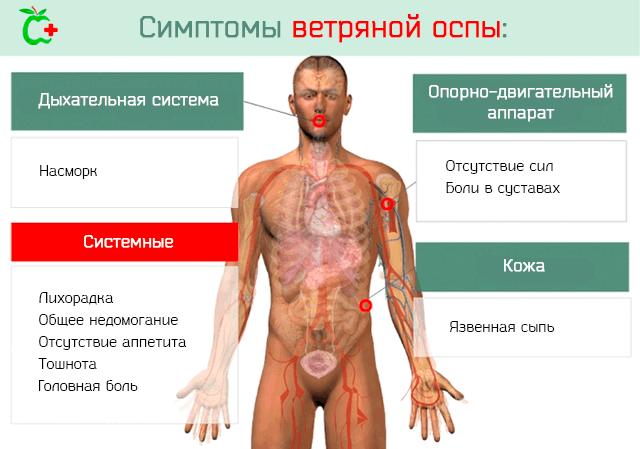 Типичные симптомы ветряной оспы