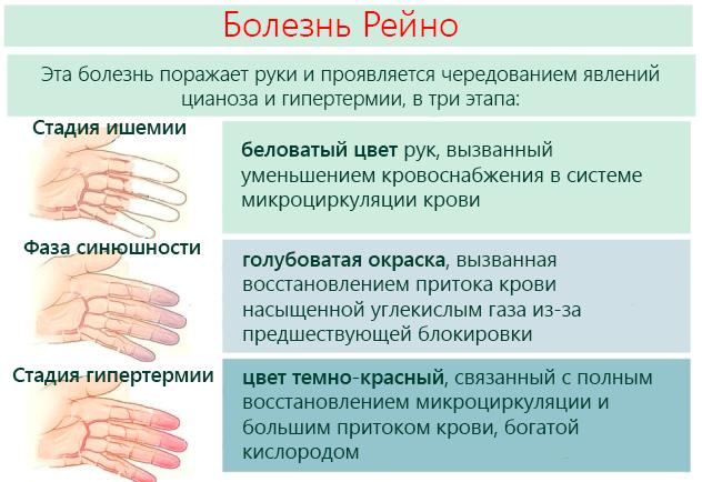 Болезнь Рейно – поражает руки и проявляется чередованием явлений цианоза и гипертермии