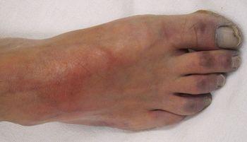 Некроз пальцев ног при сосудистой недостаточности