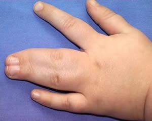 Сросшиеся пальцы на руке младенца