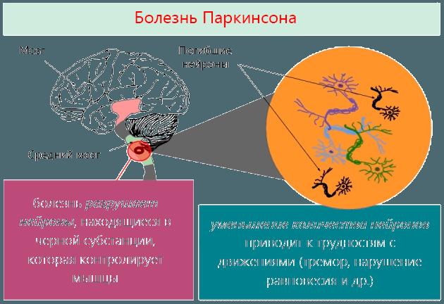 Болезнь Паркинсона разрушает нейроны, находящиеся в черной субстанции, которая контролирует мышцы