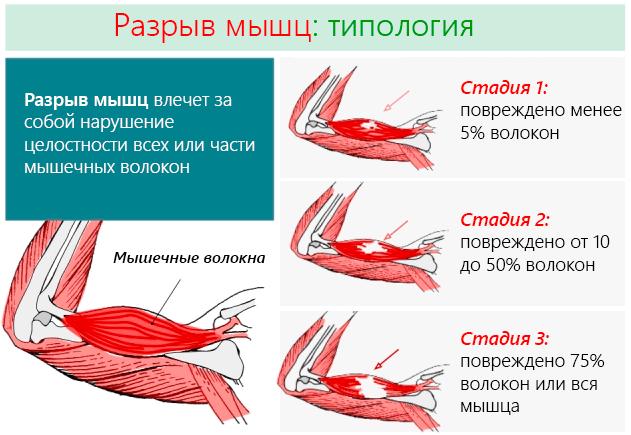 Разрыв мышц влечет за собой нарушение целостности всех или части мышечных волокон
