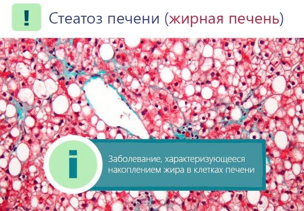 Клетки печени при стеатозе (ожирении)