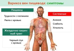 Симптомы расширения и воспаления вен пищевода