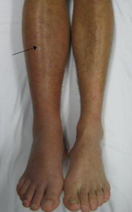 Отек от воспаления глубоких вен на одной ноге