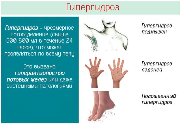 Гипергидроз – чрезмерное потоотделение (свыше 500-800 мл в течение 24 часов), что может проявляться по всему телу