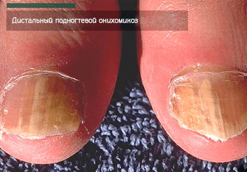 Дистальный подногтевой онихомикоз