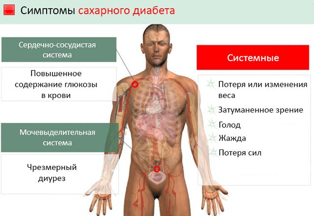 Главные симптомы развития сахарного диабета у человека
