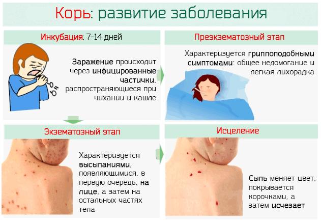 Стадии развития кори у человека