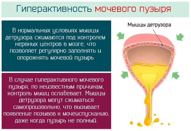 Почему развивается гиперактивность мочевого пузыря