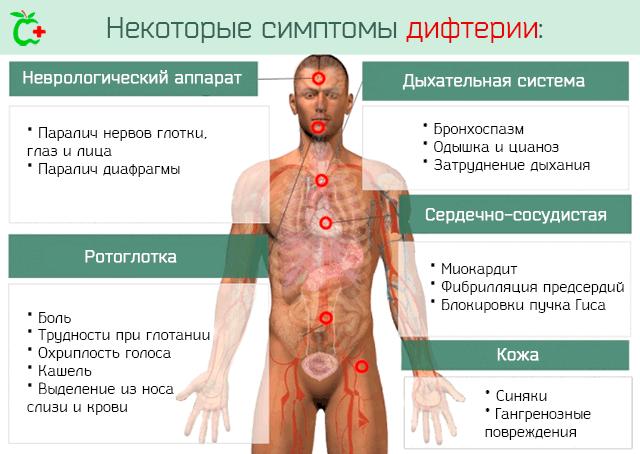 Некоторые симптомы дифтерии