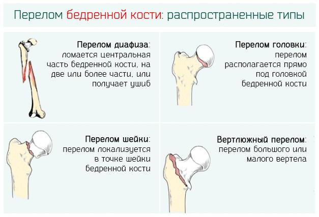 Типы переломов бедренной кости