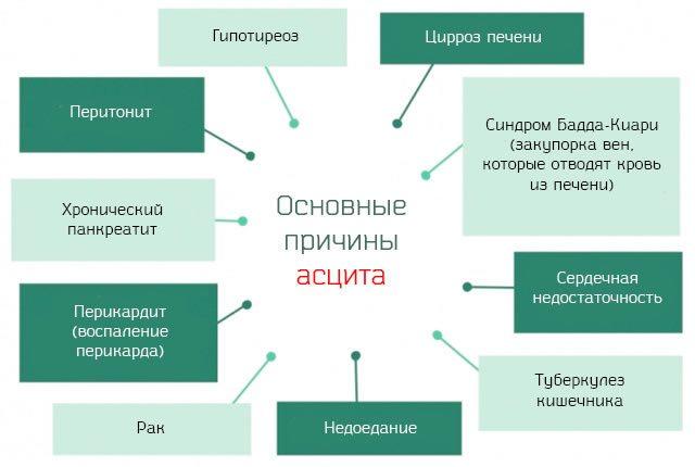 Основные причины асцита