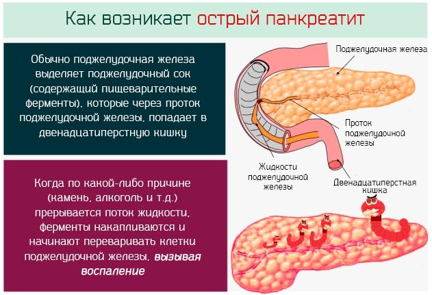 Как возникает и развивается острый панкреатит