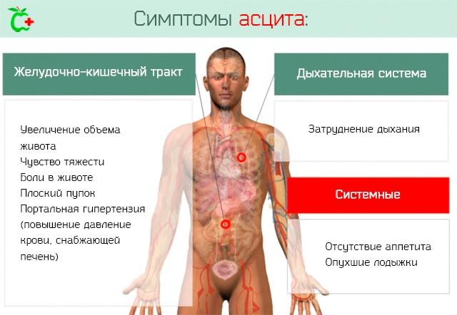 Симптомы асцита – скопления жидкости в брюшной полости