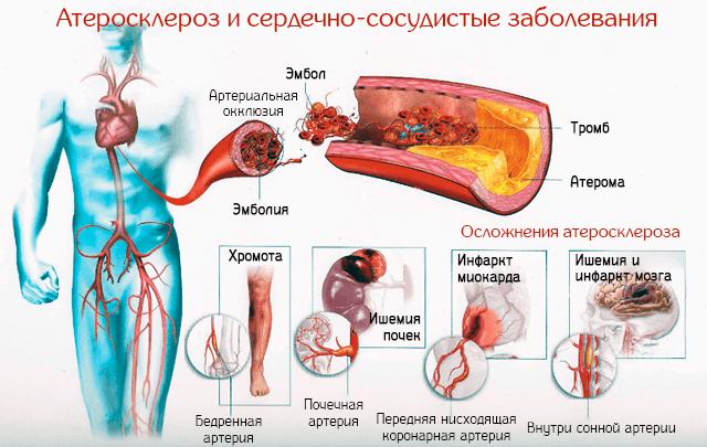 Атеросклероз и сердечно-сосудистые заболевания