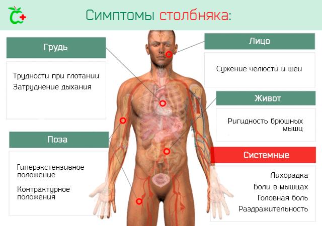 Симптомы развития столбняка у человека