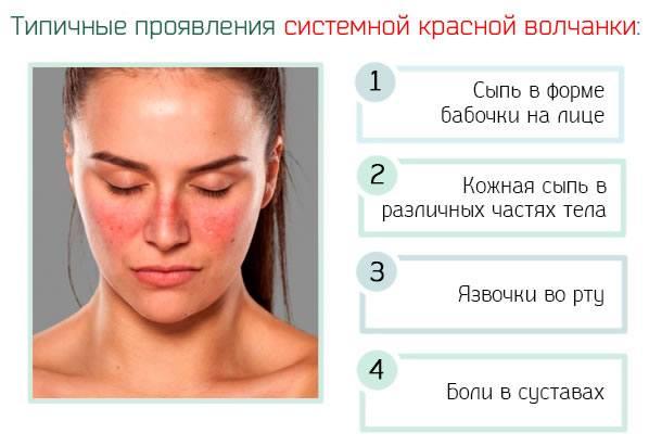 Системная красная волчанка – причины, симптомы и терапия грозного ...
