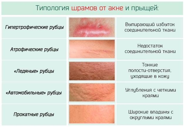 Типология шрамов от акне и прыщей