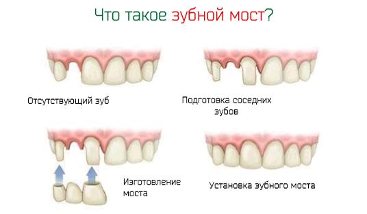 Что такое зубной мост – порядок установки