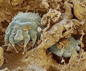 Макрофотография чесоточного клеща внутри кожи