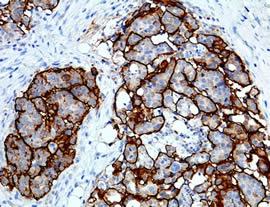 Раковый антиген CA125