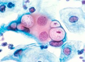 Хламидийные бактерии в легочных клетках