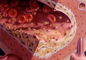 Отложение избыточного холестерина в крови на стенках сосудов